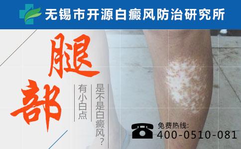 无锡手臂白癜风早期症状有哪些